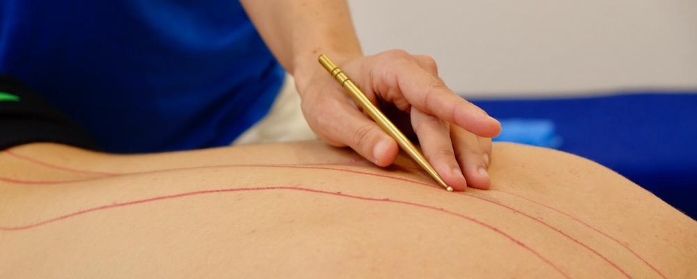 Akupressur Meridiane - Physiotherapie Haid Innsbruck