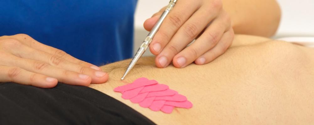 Narbenentstörung Physiotherapie Haid Innsbruck